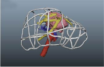 Before the operation, doctors can build 3D model through 3D printing